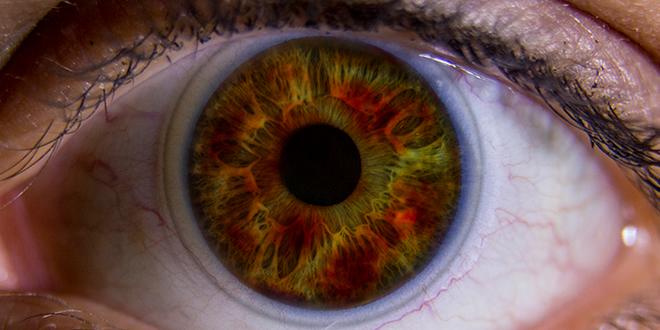 Lens'te göz yanması neden olur