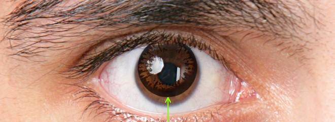 Lens gözde neden kayma yapar