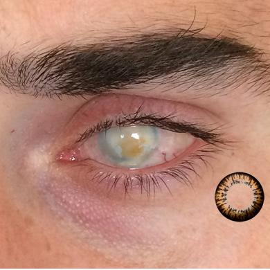 lens göze zararlı mı?