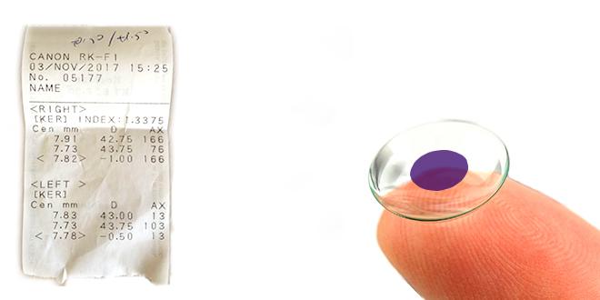 Renk Körlüğü Lens Ölçümü